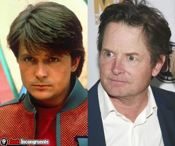 Michael J. Fox after and before 2015